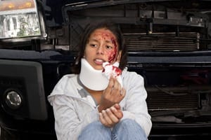 auto-accident-laceration-injury-information