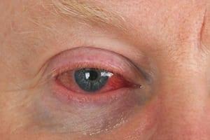 Elderly Man With Eye Injury Stock Photo