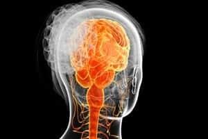 Human Skeleton With Nerve Damage Stock Photo