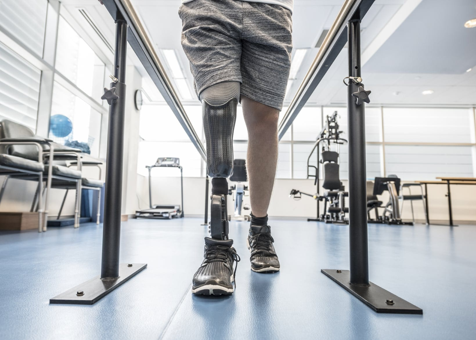 Man With Synthetic Leg Undergoing Physical Therapy Stock Photo